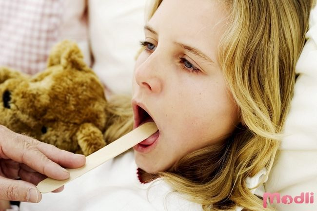 Ангіна - симптоми і лікування у дітей та дорослих