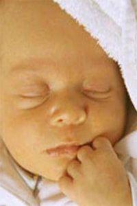 Фізіологічна жовтяниця у новонароджених дітей