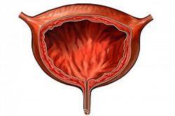 Екстрофія сечового міхура
