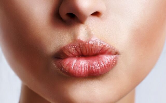 Як боротися з заїдемо: забезпеч здоров'я своїх губ
