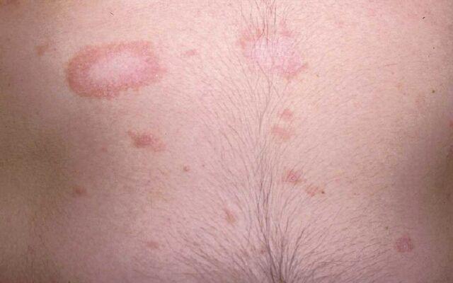 Як позбутися від рожевого лишаю: лікування хвороби