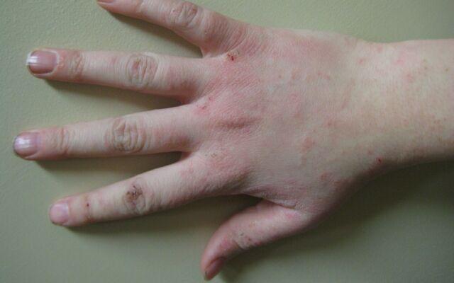 Як вилікувати дерматит на руках: ефективні методи