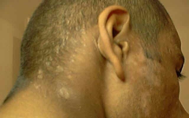 Лікування грибка шкіри голови: особливості терапії