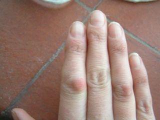 Лікування тріщин на згинах і подушечках пальців рук