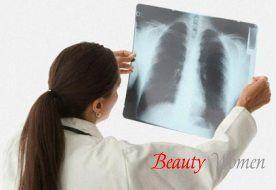 Лікування запалення легенів народними засобами. Симптоми пневмонії