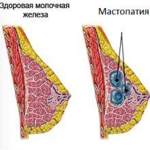 Методи лікування кісти молочної залози