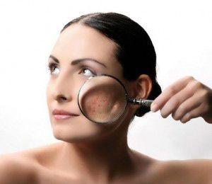 Себорея на обличчі - причини і методи лікування