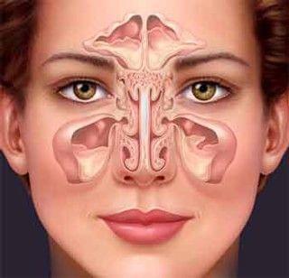 Септопластика носової перегородки: ендоскопічна і лазерна