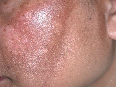 Жирні ділянки шкіри обличчя - причини появи і правильний догляд